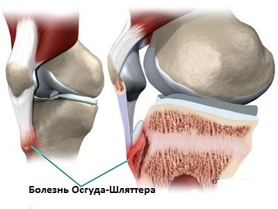 Болезнь Осгуда-Шлаттера - что это такое, симптомы и лечение