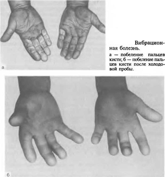 Опух сустав на пальце руки - что делать? Причины и лечение
