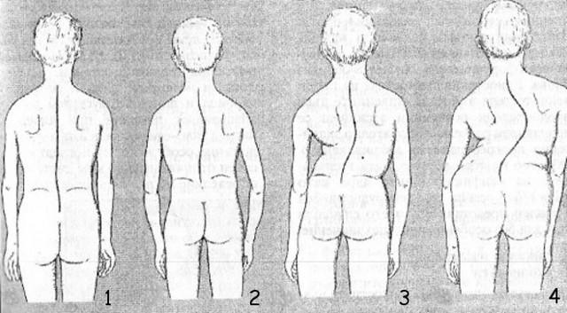 Левосторонний сколиоз позвоночника 1, 2 и 3 степени - что это такое