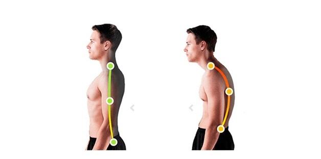 Круглая спина - что это такое и как исправить проблему