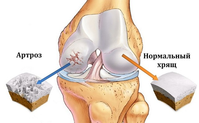Профилактика артроза и артрита коленных суставов