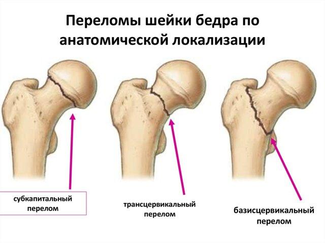 Реабилитация после перелома шейки бедра - основные правила