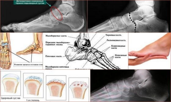 Артроз таранно-ладьевидного сустава 1 и 2 степени