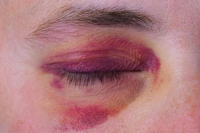Перелом глазницы или орбиты глаза - лечение и последствия