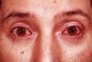 Реактивный артрит - симптомы и лечение у женщин и мужчин