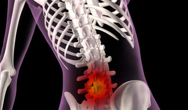 Перелом позвоночника - симптомы, лечение и реабилитация