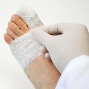 Ушиб пальца на ноге - что делать в домашних условиях?