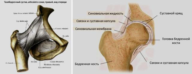 Периартрит бедренных сухожилий - симптомы и лечение