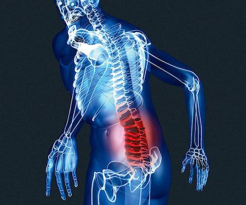 Боли при остеохондрозе - как быстро и эффективно снять их