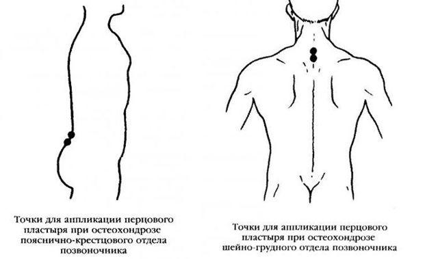 Китайские пластыри от остеохондроза - какой лучше выбрать?
