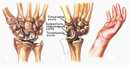 Подвывих головки лучевой кости у детей - методы лечения