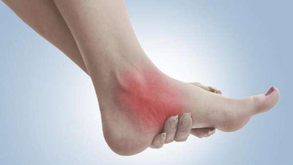 Опухают суставы на руках и ногах причины - 5 причин и лечение
