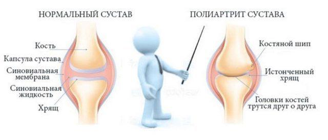 Полиартрит коленного сустава - симптомы и лечение