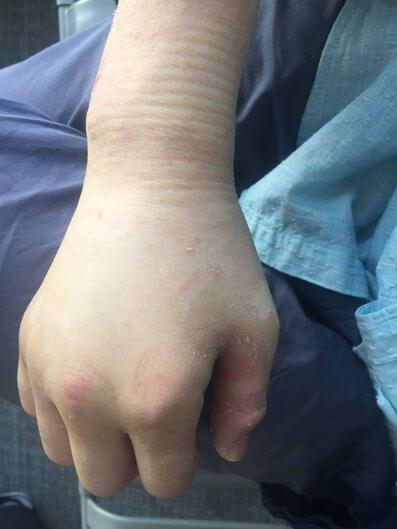 После снятия гипса рука отекает и сильно болит - что делать