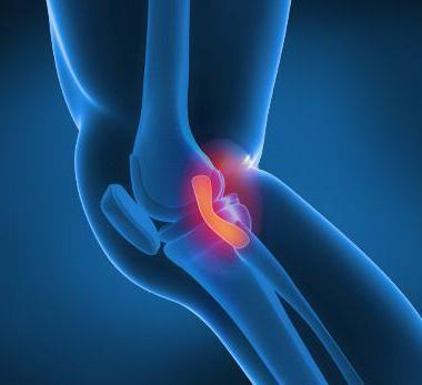 Лигаментоз коленного сустава - что это такое и как лечить