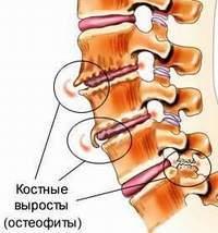 Остеофиты поясничного отдела позвоночника - лечение