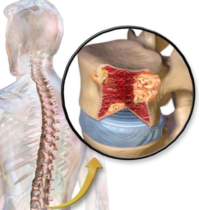 Опухоль позвоночника - симптомы, признаки и лечение