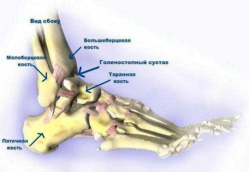 Посттравматический артроз голеностопного сустава - лечение