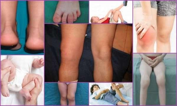 Реактивный артрит у детей - причины, симптомы и лечение