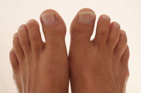 Бурсит большого пальца стопы - симптомы и лечение