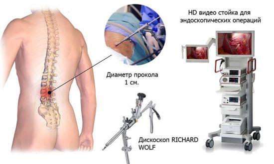 Дорзальная грыжа - что это такое и как проходит лечение?