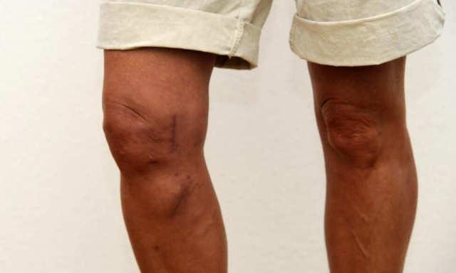Лечение артроза коленного сустава в домашних условиях