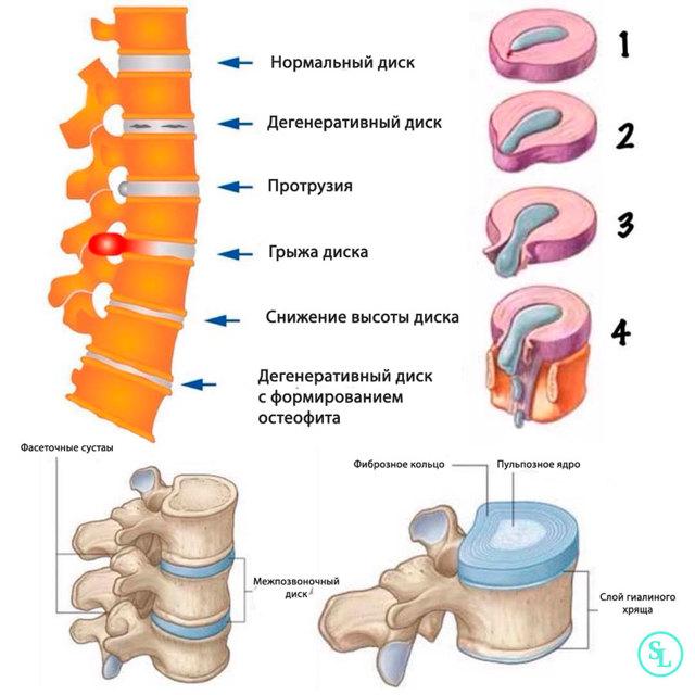 Секвестрированная грыжа позвоночника - что это такое и как лечить