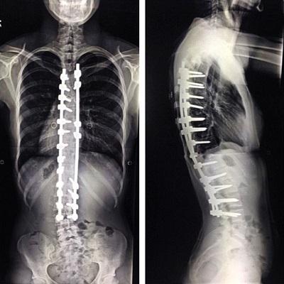 Сколиоз - операция на позвоночник. Особенности проведения