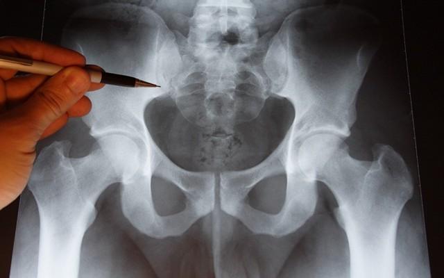 Перелом крестца - как долго заживает? Лечение и последствия
