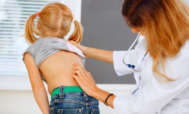 Сколиоз у детей - причины возникновения и лечение