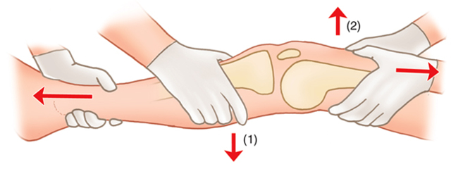 Вывих коленного сустава - симптомы и лечение
