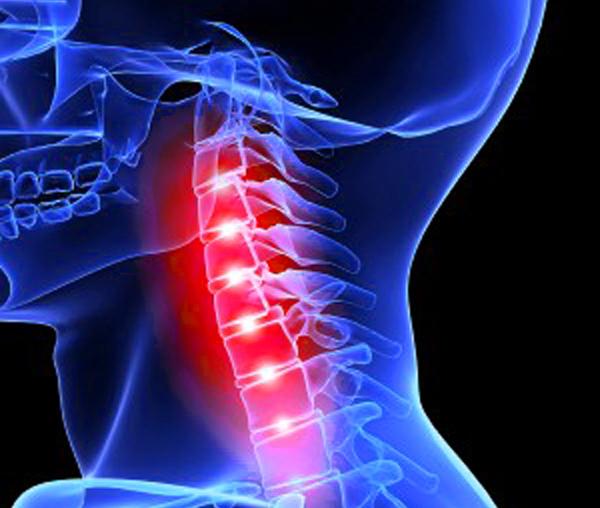 Перелом шеи - симптомы, виды, лечение и последствия