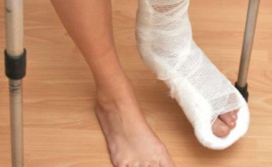 Перелом джонса 5 плюсневой кости - диагностика и лечение