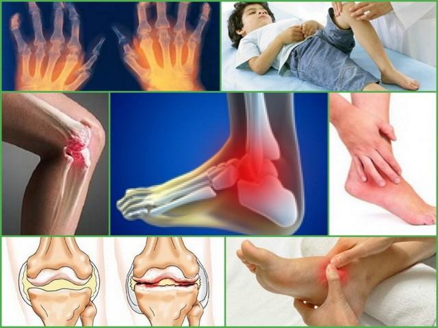 Хламидийный артрит - симптомы, диагностика и лечение