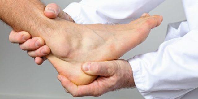 Лечение подагры при обострении - методы терапии