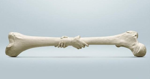 Как ускорить срастание костей после перелома? Секреты сращивания