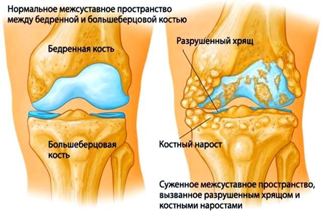 Не сгибается колено и не разгибается - что делать, причины