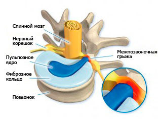 Экструзия дисков позвоночника - что это такое и как лечить