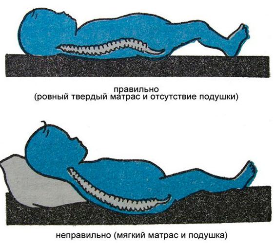 Как спать при сколиозе - правила выбора ортопедического матраса