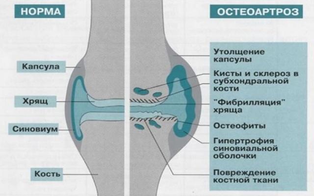 Субхондральный склероз - что это такое, чем опасно и как лечится