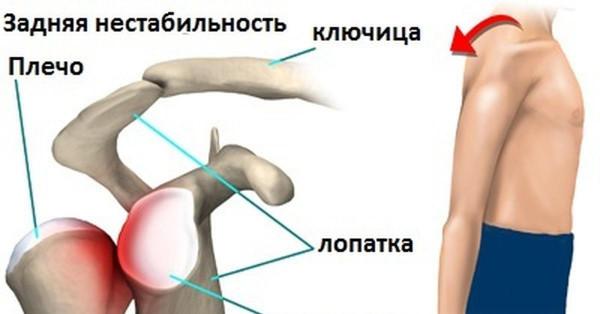 Вывих ключицы - симптомы, диагностика и лечение