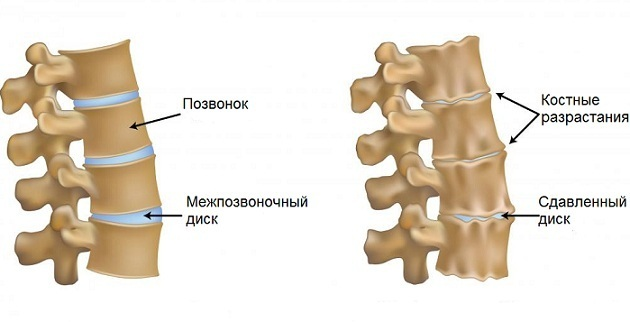 Артроз шейного отдела позвоночника - что это, симптомы и лечение