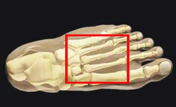 Маршевый перелом - симптомы, диагностика и лечение