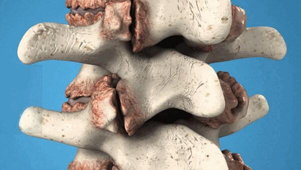Костно-хрящевой экзостоз - что это такое, симптомы и лечение