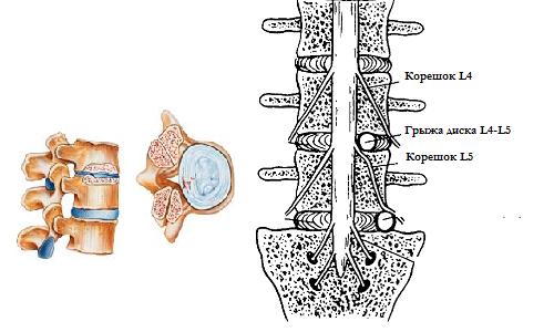 Фораминальная грыжа межпозвоночного диска - что это такое?