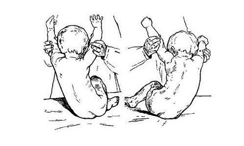 Врожденный сколиоз позвоночника - причины и как лечить