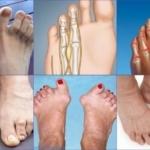 Артрит пальцев ног - симптомы и лечение воспаление суставов