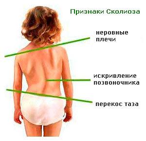 Правосторонний сколиоз позвоночника 1 и 2 степени - лечение