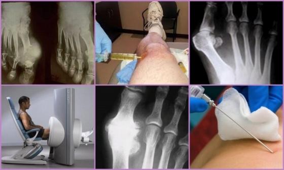 Анализы при подагре на ногах и руках - виды и расшифровки