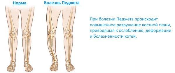 Болезнь Педжета - что это такое, симптомы и лечение